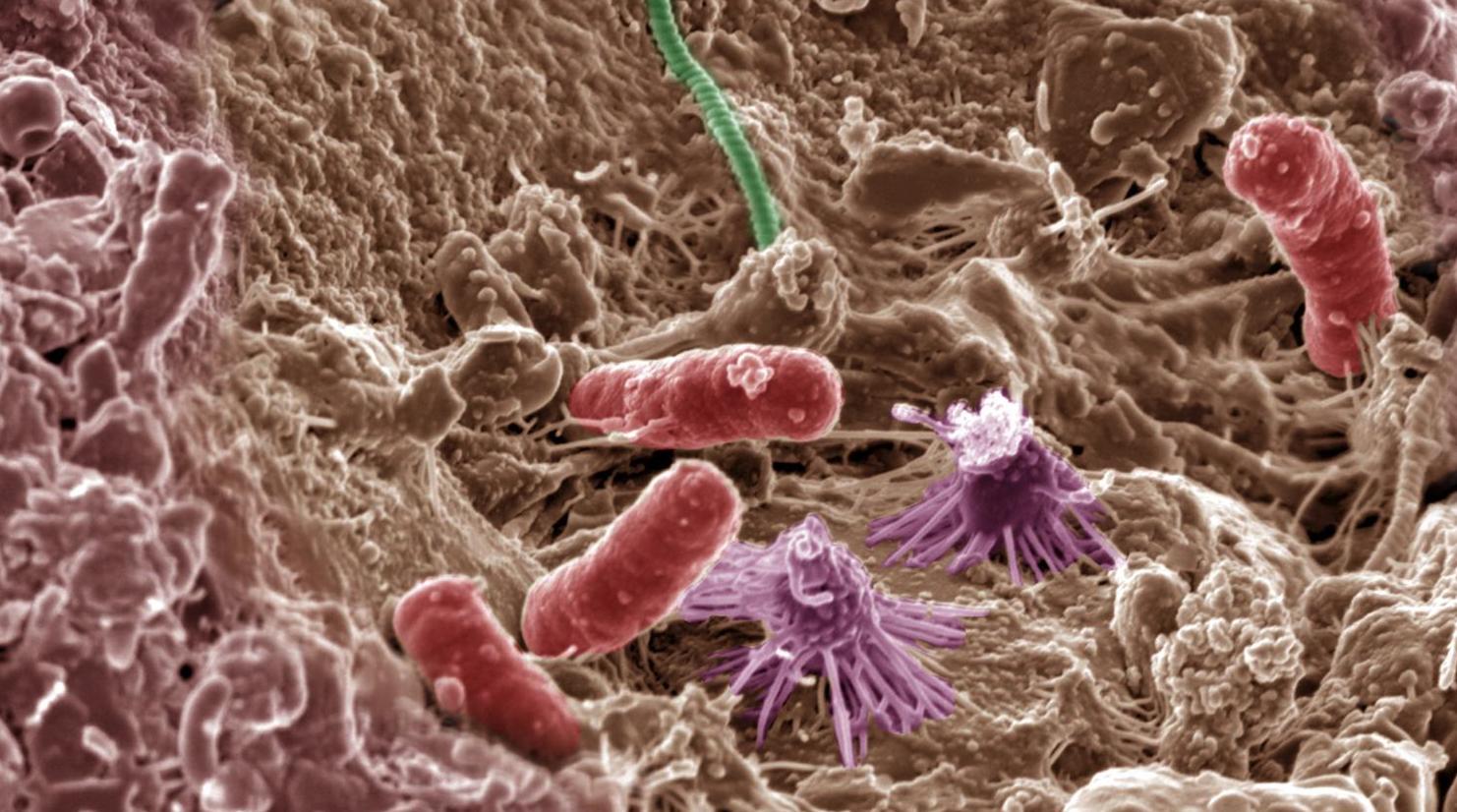 Wie Mikroben im Boden unsere Gesundheit und unsere Ernährung beeinflussen